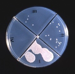 Agar culture plates reveal the results of a drug susceptibility test. © CDC