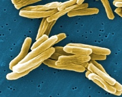 Tuberculosis bacteria that cause TB disease