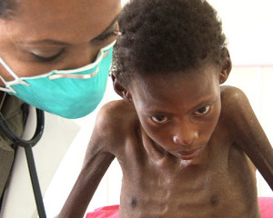 A child with MDR TB and HIV in Lesotho &#169 PIH