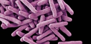 High magnification of TB bacteria that cause TB disease
