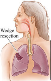 Wedge resection surgery for the treatment of TB