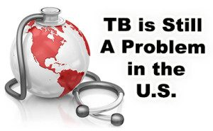 TB in the United States